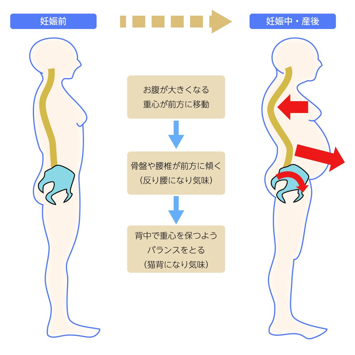 産後の姿勢のゆがみ
