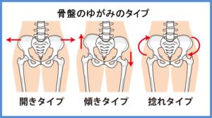 骨盤の歪みのタイプ