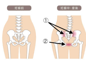 産後の骨盤の開き
